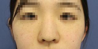 グローバルビューティークリニック 大阪院の『 プロテーゼ 』『 鼻尖形成(3D) 』『 鼻尖部軟骨移植 』『 鼻柱下降術 』『 鼻翼縮小(内外+肉厚減幅) 』の症例写真(ビフォー)