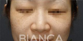BIANCA銀座のPico Spot×ピコトーニング (PicoSure)】の症例写真(ビフォー)