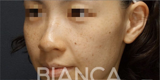 BIANCA銀座のPico Spot✖️ピコトーニング (PicoSure)】の症例写真(ビフォー)