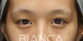 BIANCA銀座の生まれつきの左右差を調整の症例写真(ビフォー)