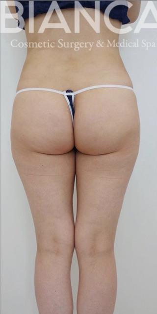 BIANCA銀座の脂肪吸引で美脚〜美尻への症例写真(ビフォー)
