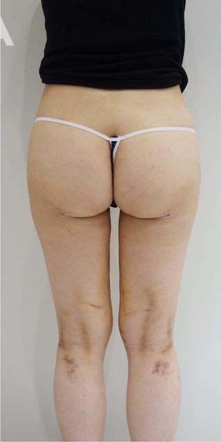 BIANCA銀座の脂肪吸引で美脚〜美尻への症例写真(アフター)