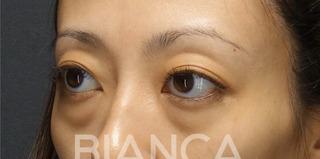 BIANCA銀座の目の下クマたるみ取りの症例写真(ビフォー)