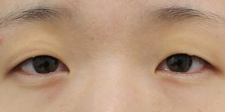 グローバルビューティークリニック 大阪院の『 GBCシークレット法 』の症例写真(ビフォー)