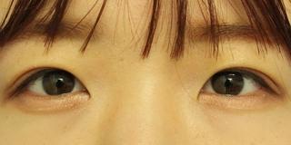 グローバルビューティークリニック 大阪院の『 GBCシークレット法 』の症例写真(アフター)