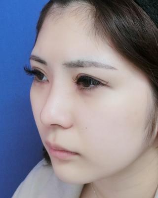 グローバルビューティークリニックの『 たるみ取り併用全切開法二重術 』『 韓流目頭切開 』+『 GBCソフトプロテーゼ隆鼻術 』『 GBC式鼻尖形成術3D法 』『 鼻尖部軟骨移植 』『 鼻翼縮小術 』の症例写真(アフター)