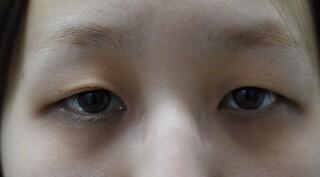 みずほクリニックのレーザーメスによる二重切開手術の症例写真(ビフォー)