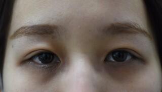 みずほクリニックのレーザーメスによる二重切開手術の症例写真(アフター)