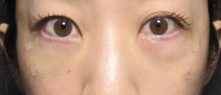 X CLINICの切らない目の下のたるみとり+コンデンスリッチ+マイクロナノファット脂肪注入の症例写真(アフター)