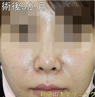 山本クリニックの鼻尖形成術(だんご鼻解消術)の症例写真(アフター)