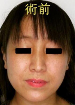 銀座TAクリニックのバッカルファット除去の症例写真(ビフォー)