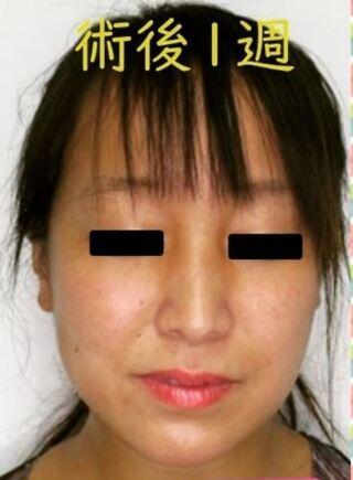 銀座TAクリニックのバッカルファット除去の症例写真(アフター)