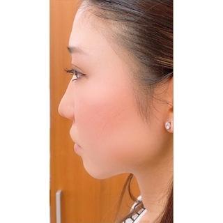 ウェルネスビューティクリニック 大阪院の鼻(Gメッシュ)の症例写真(ビフォー)