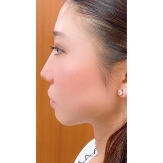 ウェルネスビューティクリニック 大阪院の鼻(Gメッシュ)の症例写真(アフター)