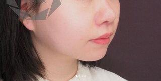 大阪TAクリニックの人中短縮術(内側+外側)の症例写真(アフター)