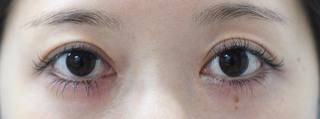 みずほクリニックの二重術切開と目頭切開の組み合わせで目を最大限大きく見せの症例写真(アフター)