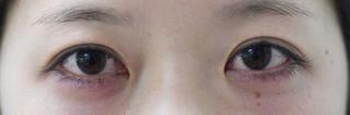 みずほクリニックの二重術切開と目頭切開の組み合わせで目を最大限大きく見せの症例写真(ビフォー)
