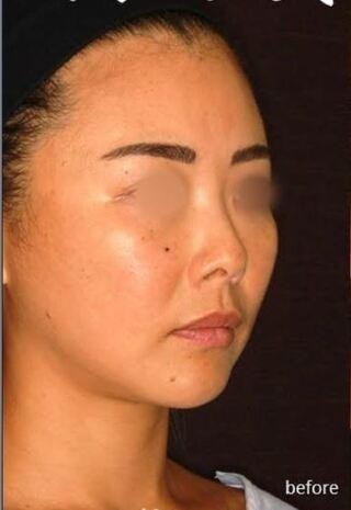 新宿TAクリニックの鼻中隔延長+鼻尖縮小+軟骨移植+鼻根プロテーゼの症例写真(ビフォー)
