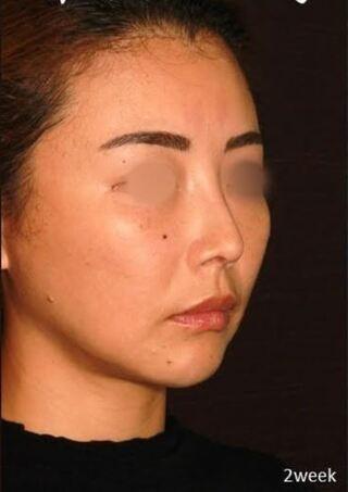 新宿TAクリニックの鼻中隔延長+鼻尖縮小+軟骨移植+鼻根プロテーゼの症例写真(アフター)