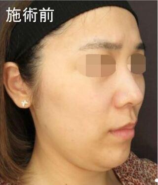 新宿TAクリニックのアゴ下脂肪吸引の症例写真(ビフォー)