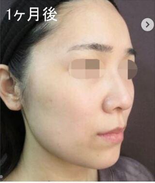 新宿TAクリニックのアゴ下脂肪吸引の症例写真(アフター)