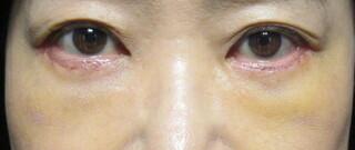 X CLINICのたるみ・クマ治療 + コンデンスリッチ + マイクロナノファット+余剰皮膚切除の症例写真(アフター)