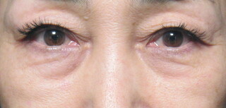 X CLINICのたるみ・クマ治療 + コンデンスリッチ + マイクロナノファット+余剰皮膚切除の症例写真(ビフォー)