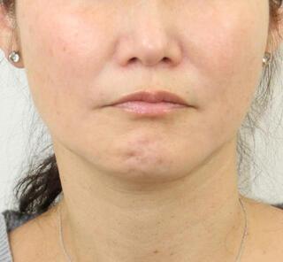 オザキクリニックLUXE新宿のVライン小顔リフト(糸リフト+アゴヒアル)の症例写真(ビフォー)