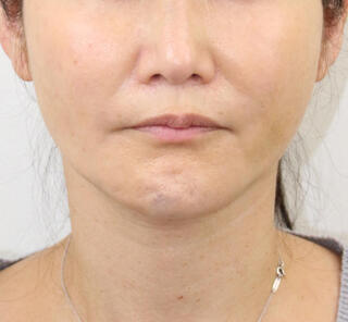 オザキクリニックLUXE新宿のVライン小顔リフト(糸リフト+アゴヒアル)の症例写真(アフター)