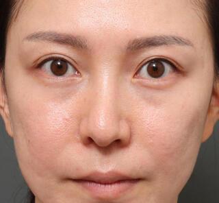 オザキクリニックLUXE新宿の3Dパーフェクトアイリフト+ハムラ法+プレミアム脂肪注入の症例写真(ビフォー)