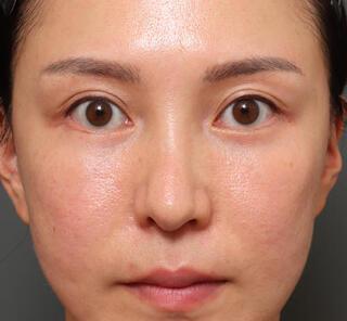オザキクリニックLUXE新宿の3Dパーフェクトアイリフト+ハムラ法+プレミアム脂肪注入の症例写真(アフター)