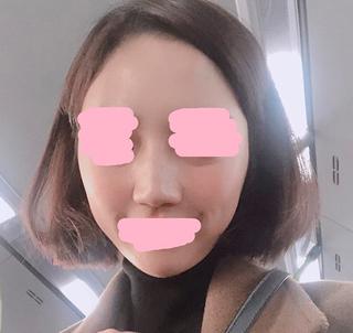 ラボム整形外科の鷲鼻+幅寄せ+鼻尖形成+曲がった鼻+鼻柱矯正の症例写真(ビフォー)