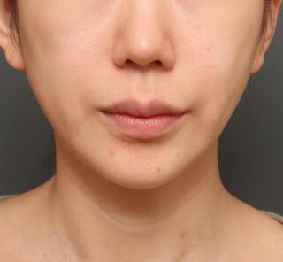 オザキクリニックLUXE新宿の人中短縮&口角挙上の症例写真(ビフォー)