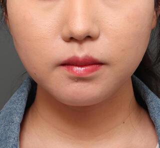 オザキクリニックLUXE新宿の口角挙上+口唇リフトの症例写真(ビフォー)