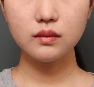 オザキクリニックLUXE新宿の口角挙上+口唇リフトの症例写真(アフター)