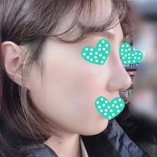 ラボム整形外科の鷲鼻+幅寄せ+鼻尖形成+曲がった鼻+鼻柱矯正の症例写真(アフター)