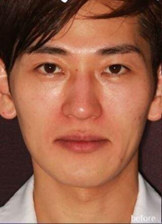 新宿TAクリニックのツヤ肌コラーゲンリフトの症例写真(ビフォー)