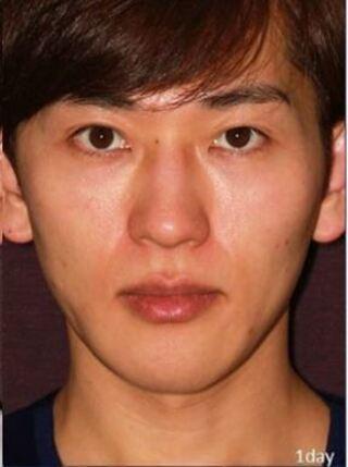 新宿TAクリニックのツヤ肌コラーゲンリフトの症例写真(アフター)