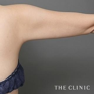 THE CLINIC(ザ・クリニック)名古屋院のベイザー脂肪吸引(二の腕・肩・脇肉)の症例写真(アフター)