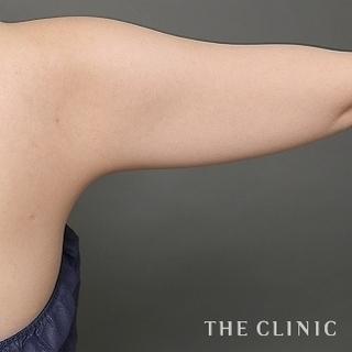 THE CLINIC(ザ・クリニック)名古屋院のベイザー脂肪吸引(二の腕・肩・脇肉)の症例写真(ビフォー)