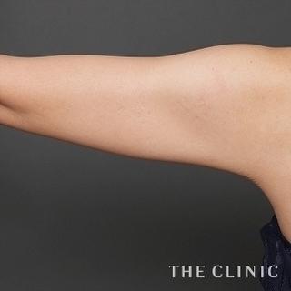 THE CLINIC(ザ・クリニック)名古屋院の ベイザー脂肪吸引(二の腕・肩)の症例写真(アフター)
