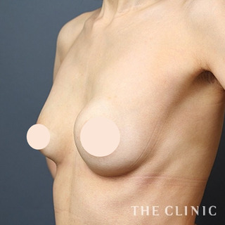 THE CLINIC(ザ・クリニック)名古屋院のヒアルロン酸豊胸の修正(しこり除去+脂肪注入豊胸)の症例写真(ビフォー)