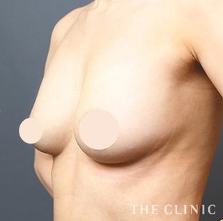 THE CLINIC(ザ・クリニック)名古屋院のヒアルロン酸豊胸の修正(しこり除去+脂肪注入豊胸)の症例写真(アフター)