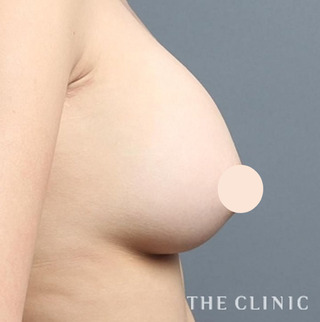 THE CLINIC(ザ・クリニック)名古屋院のシリコンバッグ豊胸の修正(バッグ除去+脂肪注入豊胸)の症例写真(ビフォー)