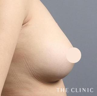 THE CLINIC(ザ・クリニック)名古屋院のシリコンバッグ豊胸の修正(バッグ除去+脂肪注入豊胸)の症例写真(アフター)