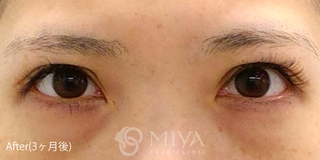 MIYAフェイスクリニックの見開き拡大手術(眼瞼下垂手術)の症例写真(アフター)