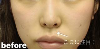 グローバルビューティークリニック 大阪院の『 鼻尖形成(3D) 』『 鼻尖部軟骨移植 』『 鼻柱下降術 』の症例写真(ビフォー)