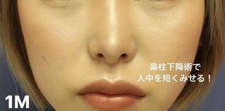 グローバルビューティークリニック 大阪院の『 鼻尖形成(3D) 』『 鼻尖部軟骨移植 』『 鼻柱下降術 』の症例写真(アフター)