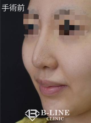 B-LINE CLINICの【耳介軟骨移植・鼻先縮小術・他院鼻プロテーゼ修正】1ヵ月後の症例写真(ビフォー)