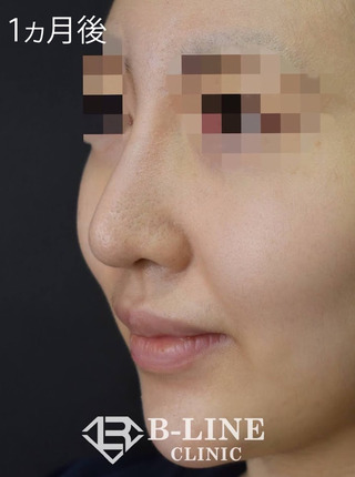 B-LINE CLINICの【耳介軟骨移植・鼻先縮小術・他院鼻プロテーゼ修正】1ヵ月後の症例写真(アフター)